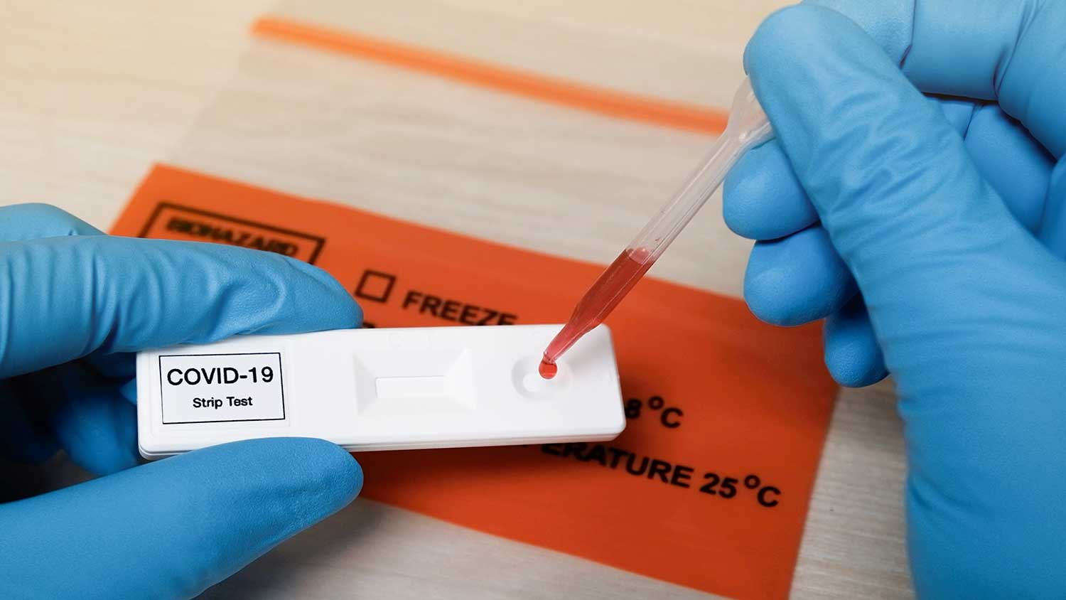 Scientist dropping blood samples onto a test plate labelled COVID-19